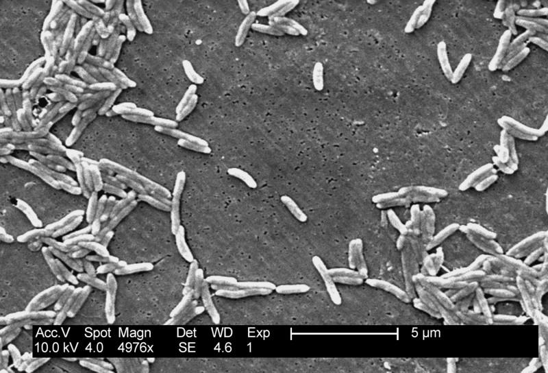 近期美國爆沙門氏菌疫情,目前已有23個州出現病例,累計達212人。(美聯社)