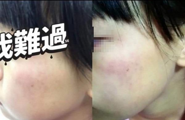 小四女童家長PO出女兒遭安親班女老師要求自己掌嘴200下的臉頰紅腫畫面。(翻攝資料照)