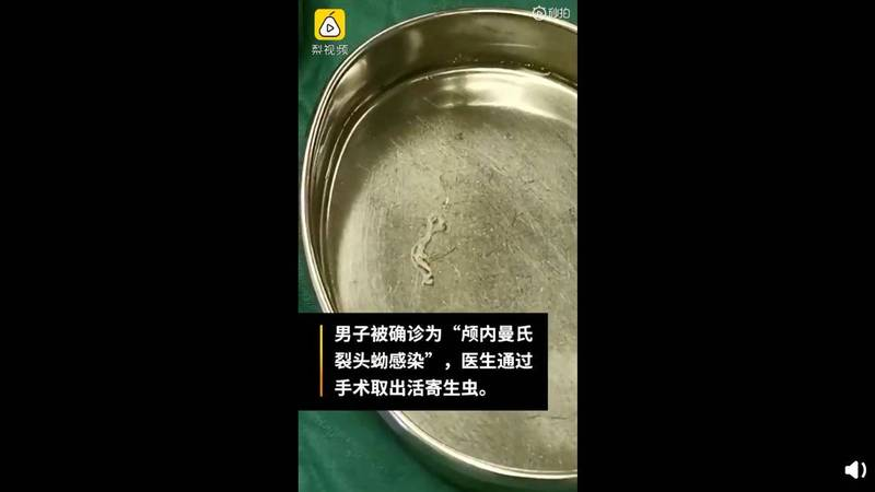 中國一名23歲男性出現半身麻木症狀,原來是遭受寄生蟲感染。(圖擷取自微博)