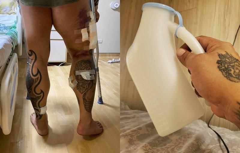 館長右腿中槍(左),今日他在臉書PO出尿壺照(右),指出「雙腳殘廢好夥伴」。(圖擷自臉書)
