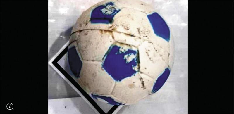 1歲半男童誤吞的寵物彈力球。(記者蔡彰盛翻攝)