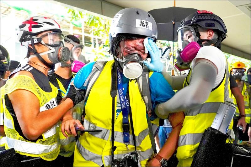香港警方以有人在示威活動中自稱記者混入人群,妨礙警方執行公務甚至襲警為由,將修改「警察通例」下的傳播媒體定義。圖為印尼女記者英達(Veby Mega Indah)去年九月在香港採訪「反送中」抗爭時,疑似遭警方發射的橡膠子彈擊中右眼導致失明。 (美聯社檔案照)