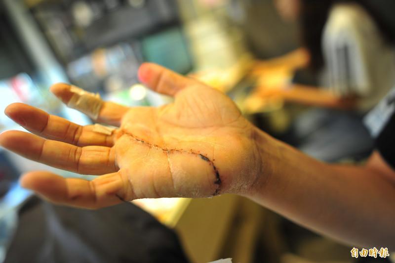 謝男在搶刀時手上手掌被割開。(記者王捷攝)