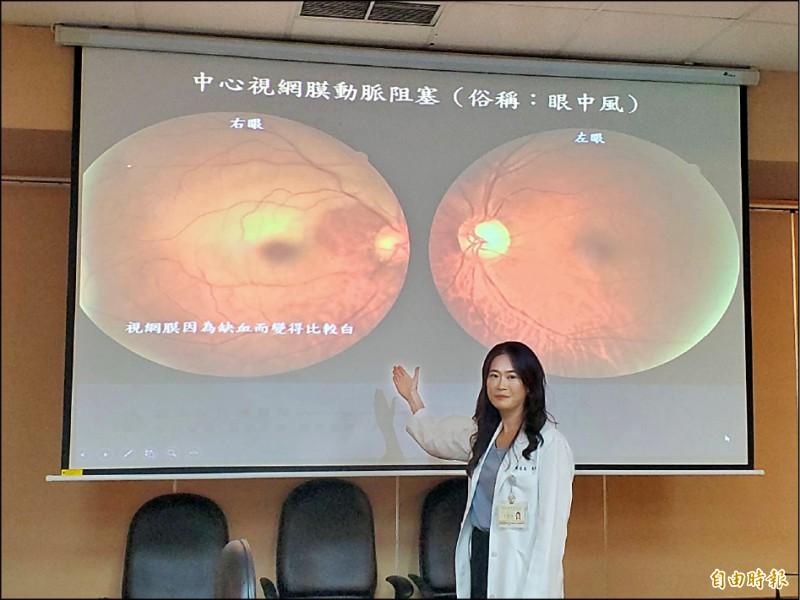 台北榮總醫師鄭惠禎說明,眼中風患者罹病的眼睛(左)會因為缺血變得比較白。(記者林惠琴攝)