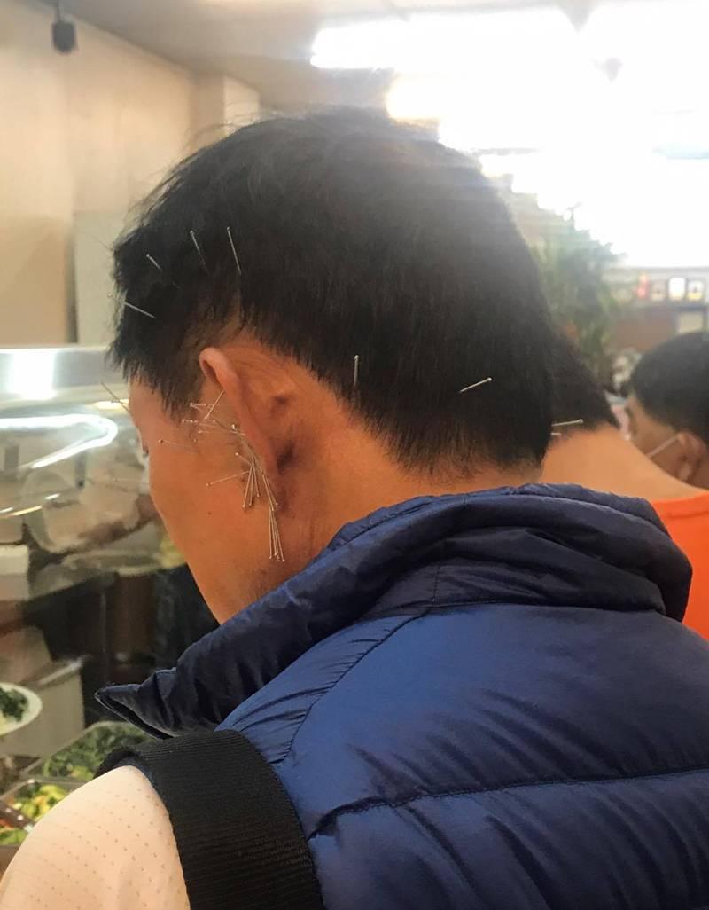 一名網友在臉書PO文,表示前幾天去買便當時,排在他前面的一位大哥「有點驚人」,只見這位男性頭上插滿了針灸用的針,令人看了不禁捏一把冷汗,網友也紛紛留言表示:「針灸到一半跑出來吃飯?」、「這如果跌倒感覺超危險」。(擷取自爆廢公社公開版)