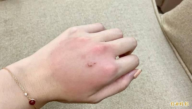 手腫到像麵龜,又紅又熱又癢的狀況讓人擔心是蜂窩性組織炎。(記者簡亭宇攝)