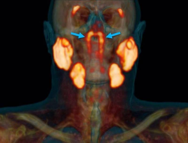 人頭正中心發現從未曝光的腺體,研究者認為這可能是人類第4組主要唾液腺,命為咽鼓管腺。(圖擷自《Radiotherapy & Oncology》)