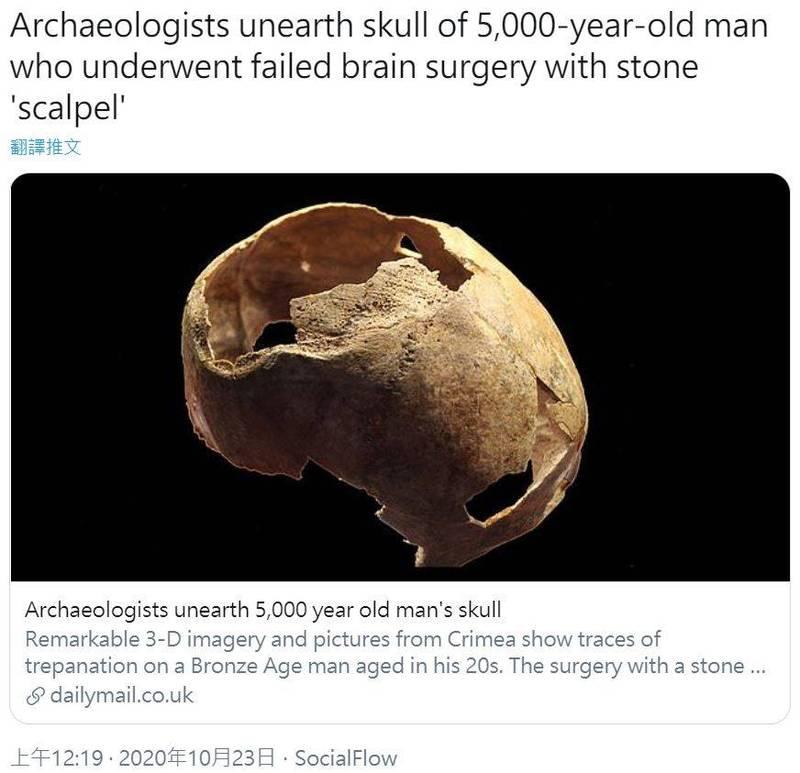 考古學家在克里米亞出土一顆5000年前的男性人類頭骨,發現上面有動過「開腦手術」的跡象。(圖擷自推特)