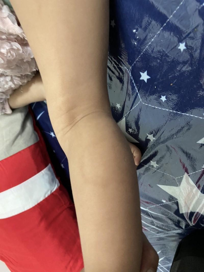 兩名幼女四肢及臉頰有多處瘀傷與咬痕,令人不捨。(民眾提供)