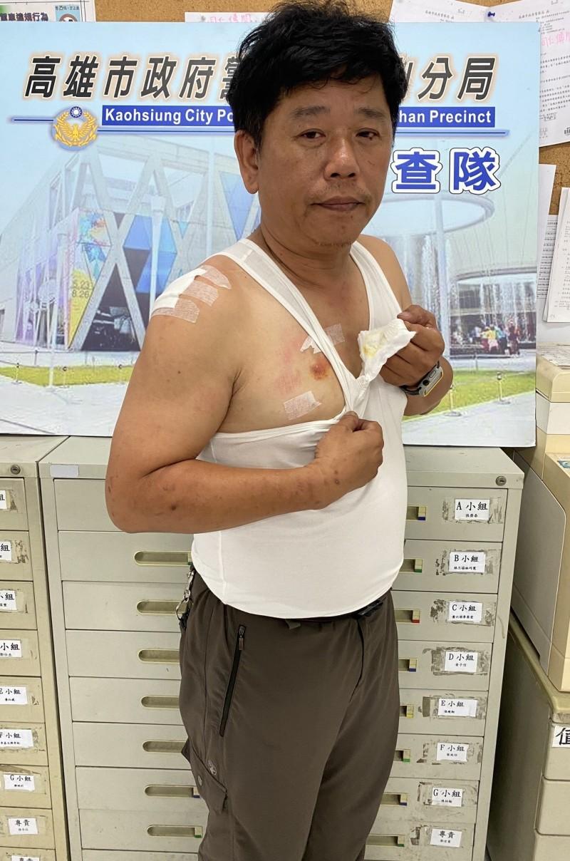 偵查隊小隊長陳昭元被嫌犯咬傷胸部等多處傷勢。(記者陳文嬋翻攝)