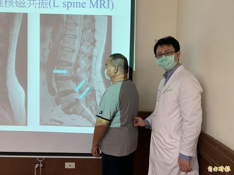 醫師楊宗熹指林先生腰椎椎間盤突出,造成急性下肢麻痛。(記者蔡淑媛攝)