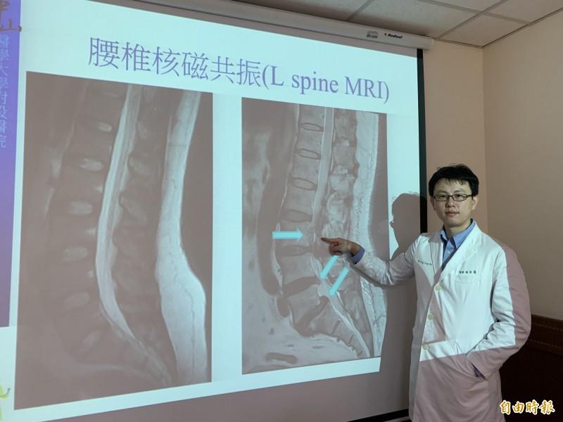 醫師楊宗熹以正常的脊椎,指出林先生腰椎椎間盤突出嚴重(圖右),造成急性下肢麻痛。(記者蔡淑媛攝)