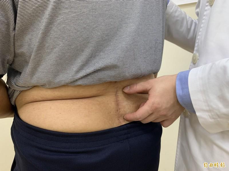 醫師楊宗熹指林先生脊椎手術,傷口約8公分,恢復良好。(記者蔡淑媛攝)