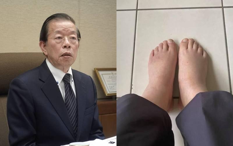 駐日代表謝長廷(左)近日返台,並在臉書PO出隔離生活趙,不過疑似是因為久坐導致他的下肢嚴重水腫(右)。(左:資料照,右圖擷自謝長廷臉書)