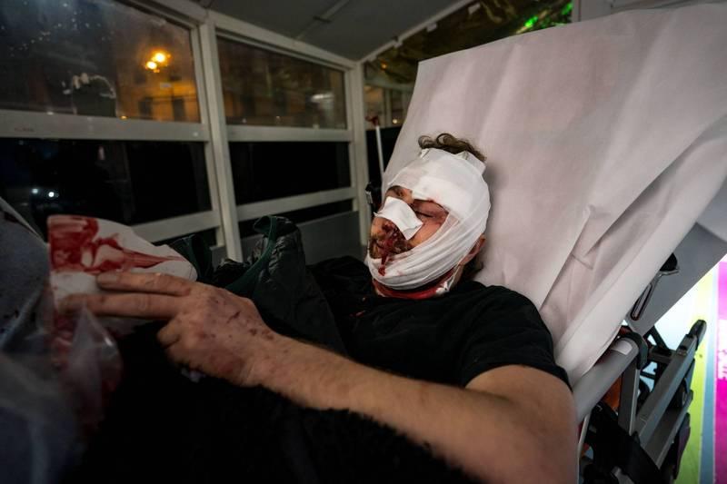 《法新社》特約攝影記者奧哈比(Ameer Alhalbi)在示威遊行現場,遭法國警方以警棍打到鼻青臉腫。(法新社)