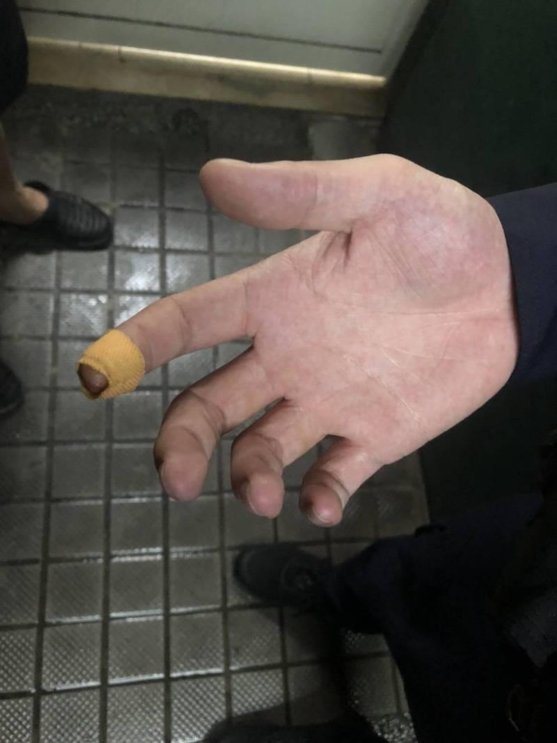 新北市汐止警分局社后派出所警員莊明展、李俊錡今天凌晨在新北市汐止區中興路好樂迪擔任守望勤務,壓制一名酒客時,被酒客口袋內的彈簧刀劃傷手指頭。(記者林嘉東翻攝)