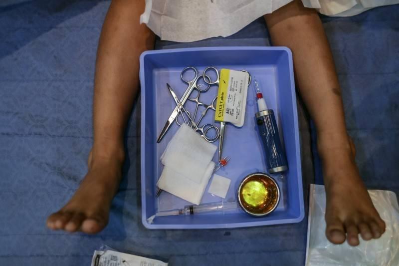 中國一間黑心醫院曾替男子進行割包皮手術時,突然要求男子接受額外治療,在他傷口未縫合的情況下,將他晾在手術台上1小時,讓他因麻藥消退後痛到崩潰。圖為割包皮示意圖。(歐新社)
