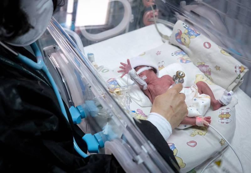 早產兒威廉體重僅709克,被送進兒童醫療中心進行治療。示意圖非當事人。(歐新社)