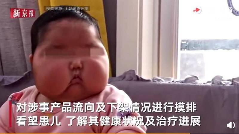 中國福建省漳州市給嬰兒使用的「抑菌霜」先前被爆出銷售偽劣產品,導致使用2個月的嬰兒慘成「大頭娃娃」。圖為受害嬰兒。(圖擷取自微博)