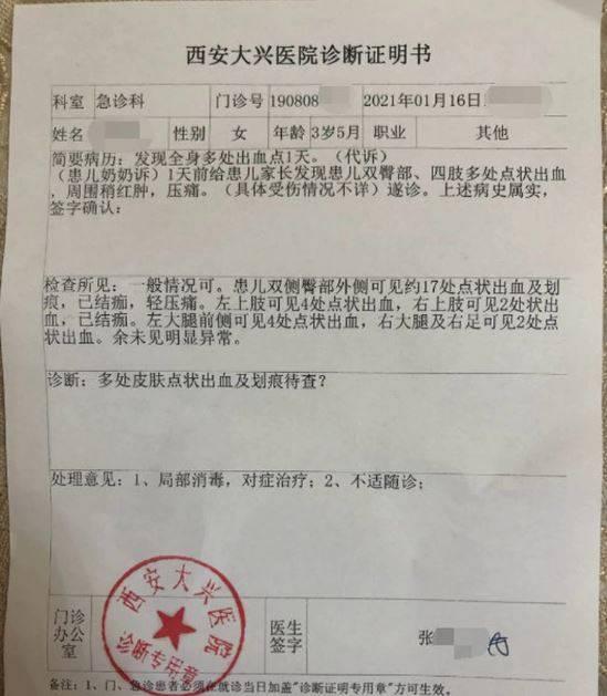 中國陝西日前發生一起幼稚園疑似虐童案,女童回家被媽媽發現身上有明顯出血點,帶去醫院檢查確認全身有29處針孔。(圖擷取自微博)