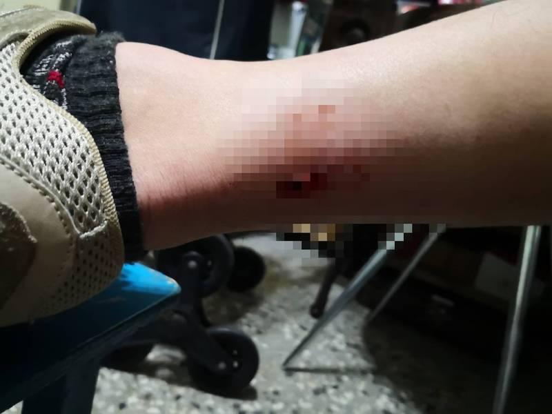 台南市北區公園北路附近出現大群野狗追車,導致1名男大生摔車,腳踝等多處受傷。(讀者提供)