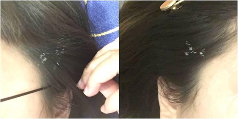 1名女子在醫美診所被醫師用雷射射到頭髮,髮鬢立刻變成白色。(圖取自爆系知識家)