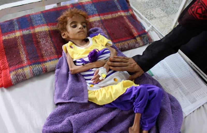 饑荒恐讓葉門出現人口斷層 聯合國籲各國加大援救力道