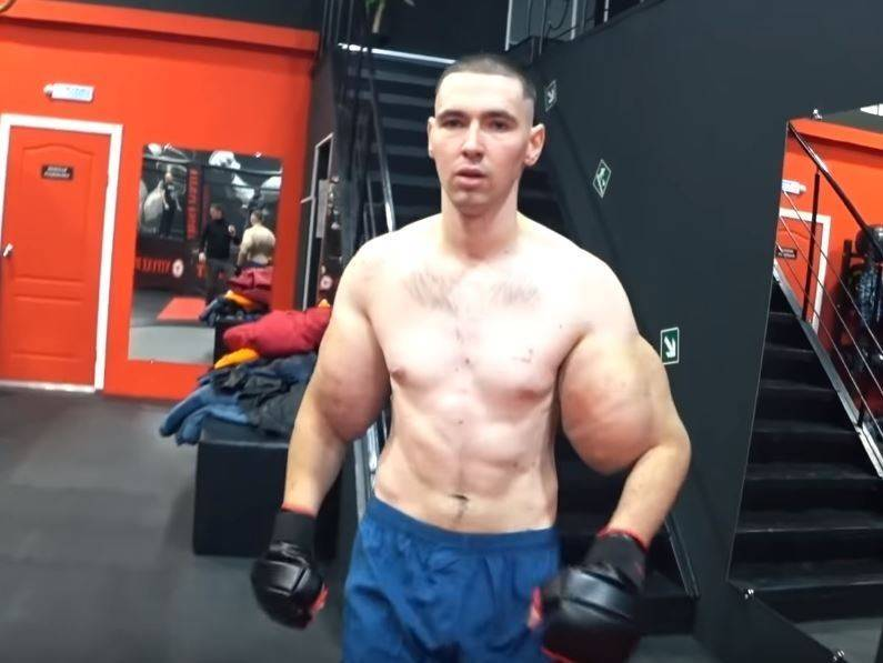 Russian soldier Teresin (pictured) retired in 2019. He injected 6 liters of petroleum jelly into 2 arms to become muscles and challenged MMA. However, he was killed by an uncle who was 20 years older than him in 3 minutes. Hit on the ground.  (The picture is taken from Олег Монгол YouTube)
