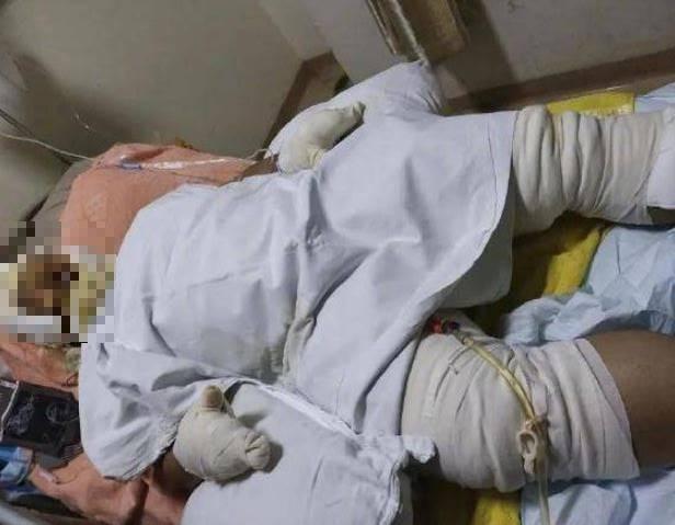 中國蔡姓男子日前至湖南長沙面試時,在廁所點菸不慎引發大爆炸。(圖翻攝自微博)