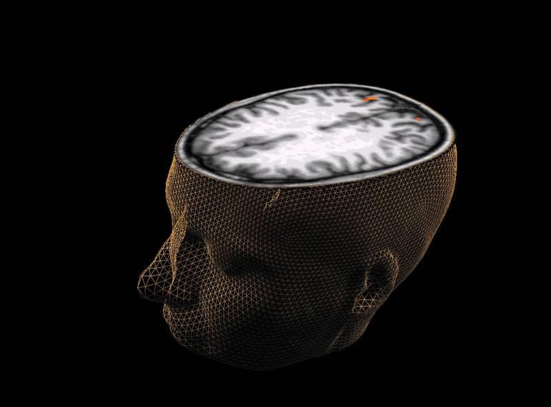 科學家最新找到並辨識出472個影響大腦形狀的基因組,其中76個與面部外型相關,有望解開人類智力發展之謎。(路透)