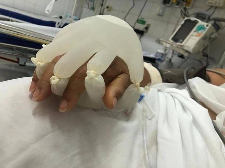 巴西護理師因不捨重症患者得武漢肺炎遭隔離,可能最後將獨自1人在醫院走完人生,將橡膠手套內灌滿溫水,包覆住病人的手,希望能讓患者感受到像是家人在身旁握住他們的手。(圖翻攝自twitter)