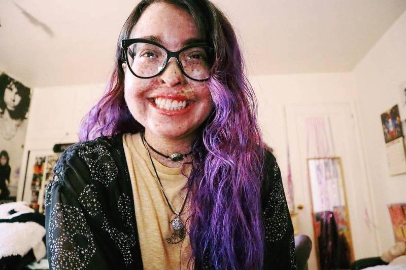 美國28歲女子夢露,從小就罹患罕見皮膚病,導致她終生都不能接觸陽光。(圖翻攝自dreafromvenus個人IG)