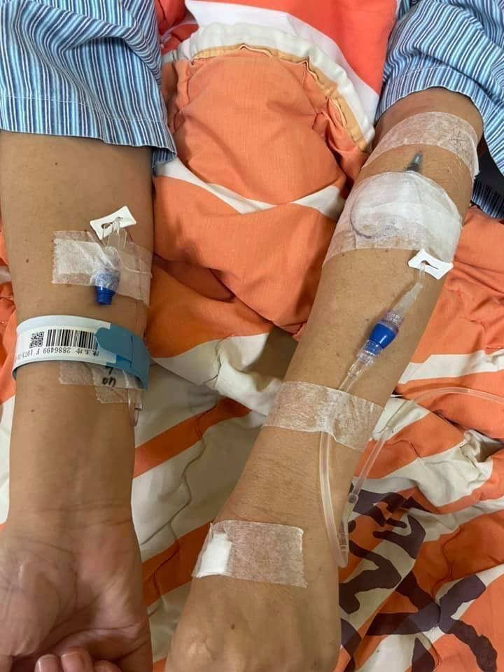 陳玉珍在臉書發出雙手被扎滿針的照片。(圖擷取自國民黨立委陳玉珍臉書)