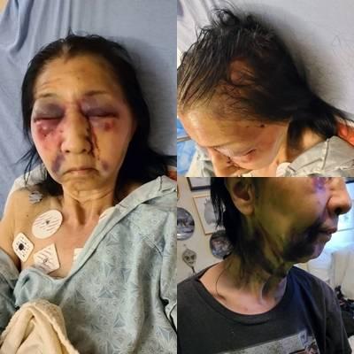 70歲墨西哥裔老婦貝基,長相類似亞洲人,她在搭公車時被一名乘客攻擊,身受重傷。(圖擷取自「the_asian_dawn」Instagram、本報合成)