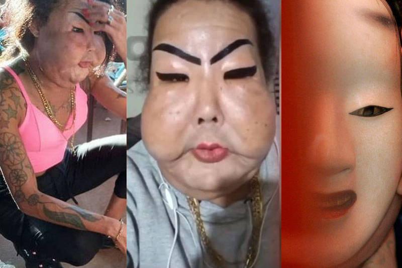 巴西跨性別女子給密醫整形失敗,「雙頰腫脹下垂」又籌不到錢,決定放棄治療。(圖擷取Juju Oliveira ig、路透,本報合成)