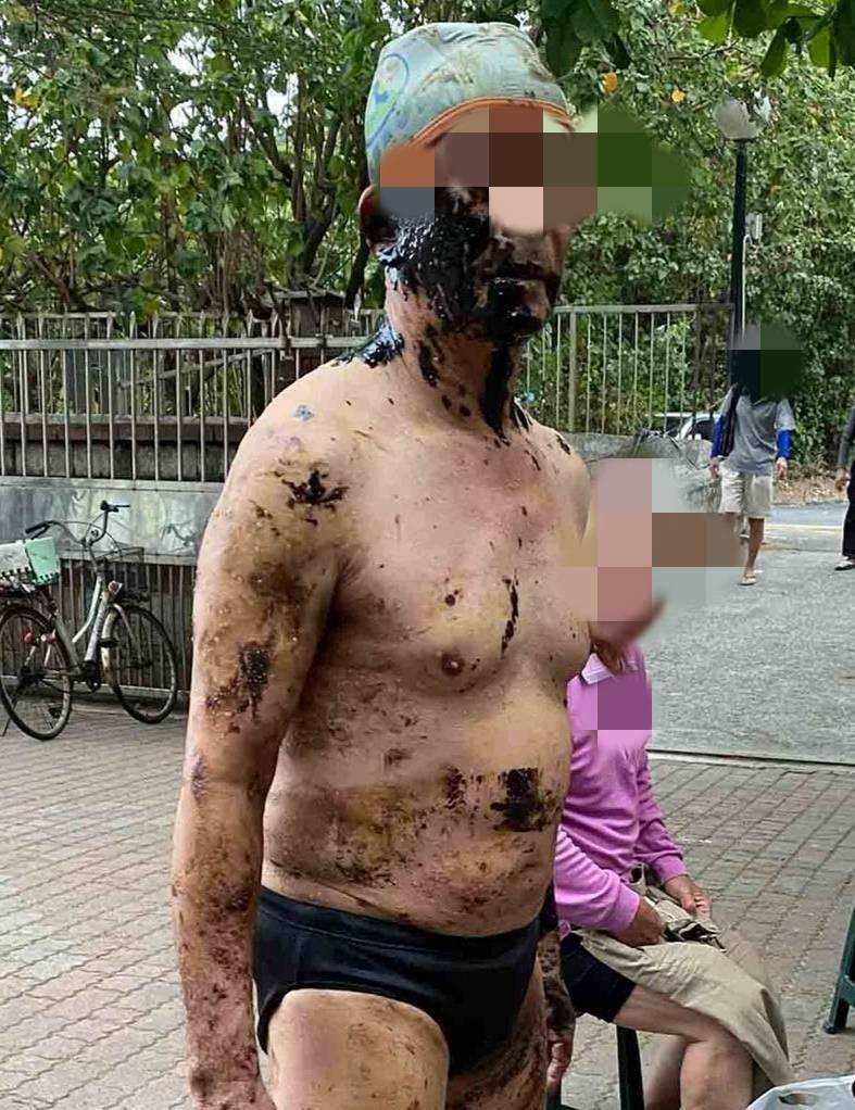 泳客沾滿惡臭廢油。(民眾提供)