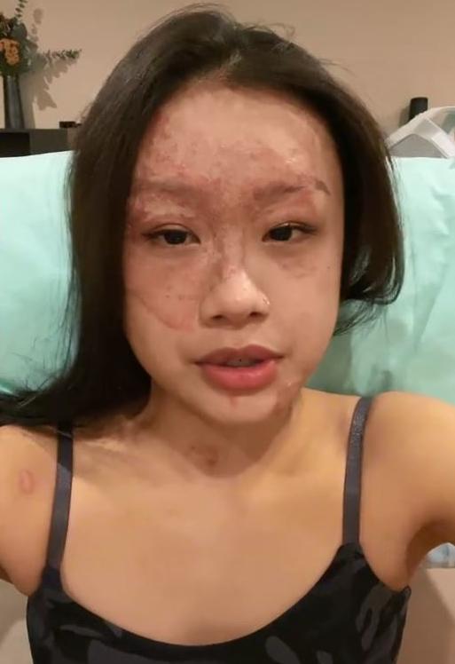新加坡23歲女子莎琳,日前和前男友在家中炸甜甜圈時,因處理油鍋不慎而遭熱油燙傷。(圖翻攝自charlenechew3005抖音)