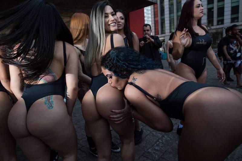 英國婦女強生接受巴西密醫整形手術,臀部被注入壓克力導致死亡。示意圖。(法新社)