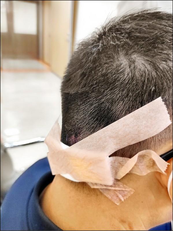 董姓員警遭男子持鐵鎚攻擊,造成後頸部2公分撕裂傷。(讀者提供)