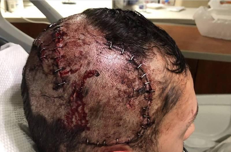 美國男子不幸遭鱷魚從背後襲擊,頭骨遭鱷魚咬破,最終幸運脫困。(圖擷取自shrkco IG)