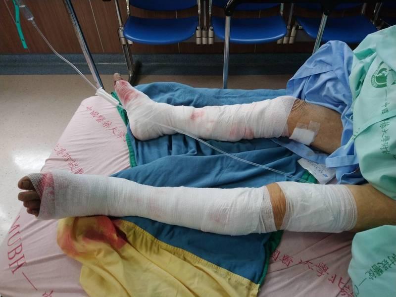 老婦人雙腳被嚴重咬傷,住院治療中。(讀者提供)