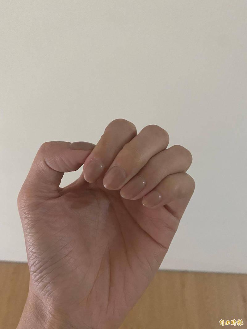 近日網傳,以「壓指甲」的方式檢測自己有無缺氧。對此,台灣事實查核中心查證表示,此為錯誤消息。示意圖。(資料照)