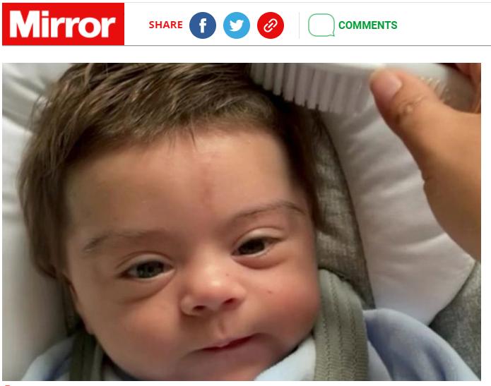 北愛爾蘭有男嬰剛出生毛髮量就超多,可愛萌樣吸引不少粉絲,但母親透露,男嬰之所以毛髮量多,是因為服藥產生的副作用。(圖截取自《鏡報》)