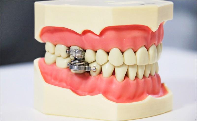 奧塔戈大學與英國研究人員研發了利用磁鐵鎖住嘴巴的減重裝置。(圖擷取自Otago University網站)