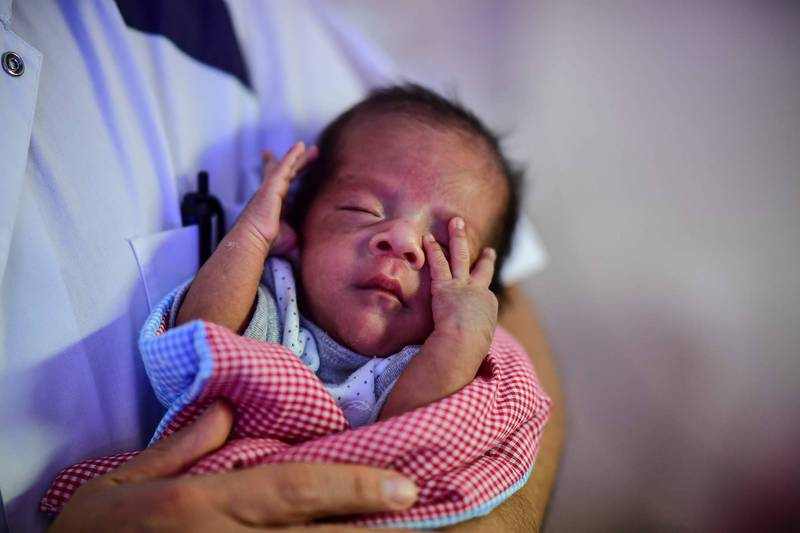 新生兒滿臉痘痘、粉刺又稱「新生兒痤瘡」屬正常現象,美國一名媽媽為此特製一款「母乳面膜」,為孩子「保養」。新生兒示意圖,非當事人。(法新社)
