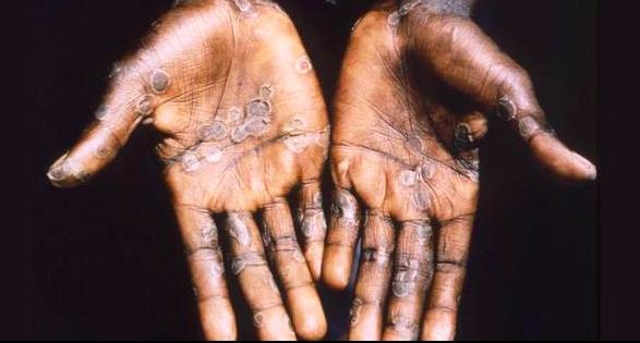美國衛生官員,目前正針對27個州共計200多人進行追踪,因為他們都曾接觸過,1名於本月初在尼日利亞旅行時,感染「猴痘病毒」(Monkeypox)後歸國的德克薩斯男子。(圖擷取自臉書MMWR)