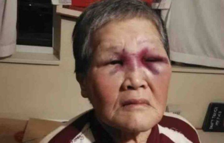 美國舊金山一名76歲亞裔老婦謝蕭珍(見圖)先前遭一名男子傑金斯襲擊,導致她的雙眼嚴重瘀青與流血。不過傑金斯的辯護律師舉出證據顯示,無家可歸的傑金斯在案發前也曾被其他人襲擊多達45次,藉此強調傑金斯也是受害者。(圖擷取自「Gofundme」官網)