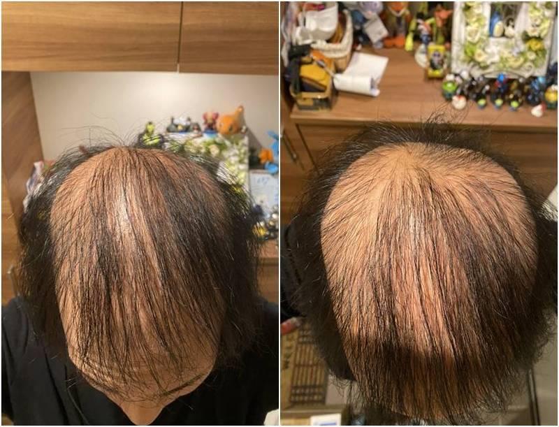 日本男子いるしげ接種完莫德納疫苗後,開始嚴重掉髮。(圖翻攝自いるしげ推特)