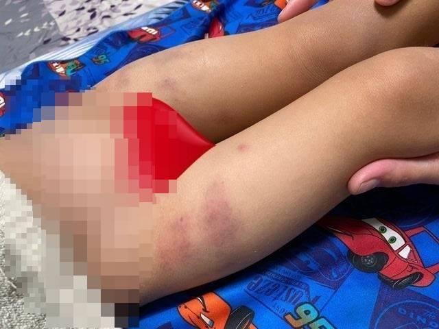 新竹市某幼兒園園長兼負責人鄭男因手捏男童大腿造成挫傷,被新竹地院依成年人故意對兒童犯傷害罪判刑6月。幼兒園設立許可也被新竹市府廢止。(資料照)