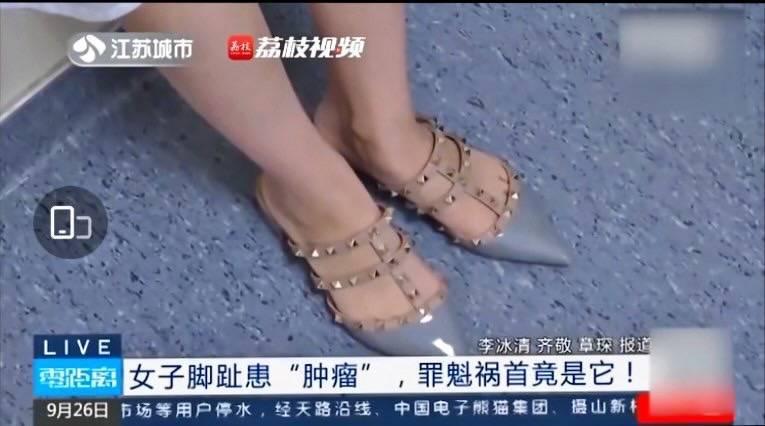 長期穿著尖頭鞋容易造成趾間神經瘤。(圖擷取自微博)